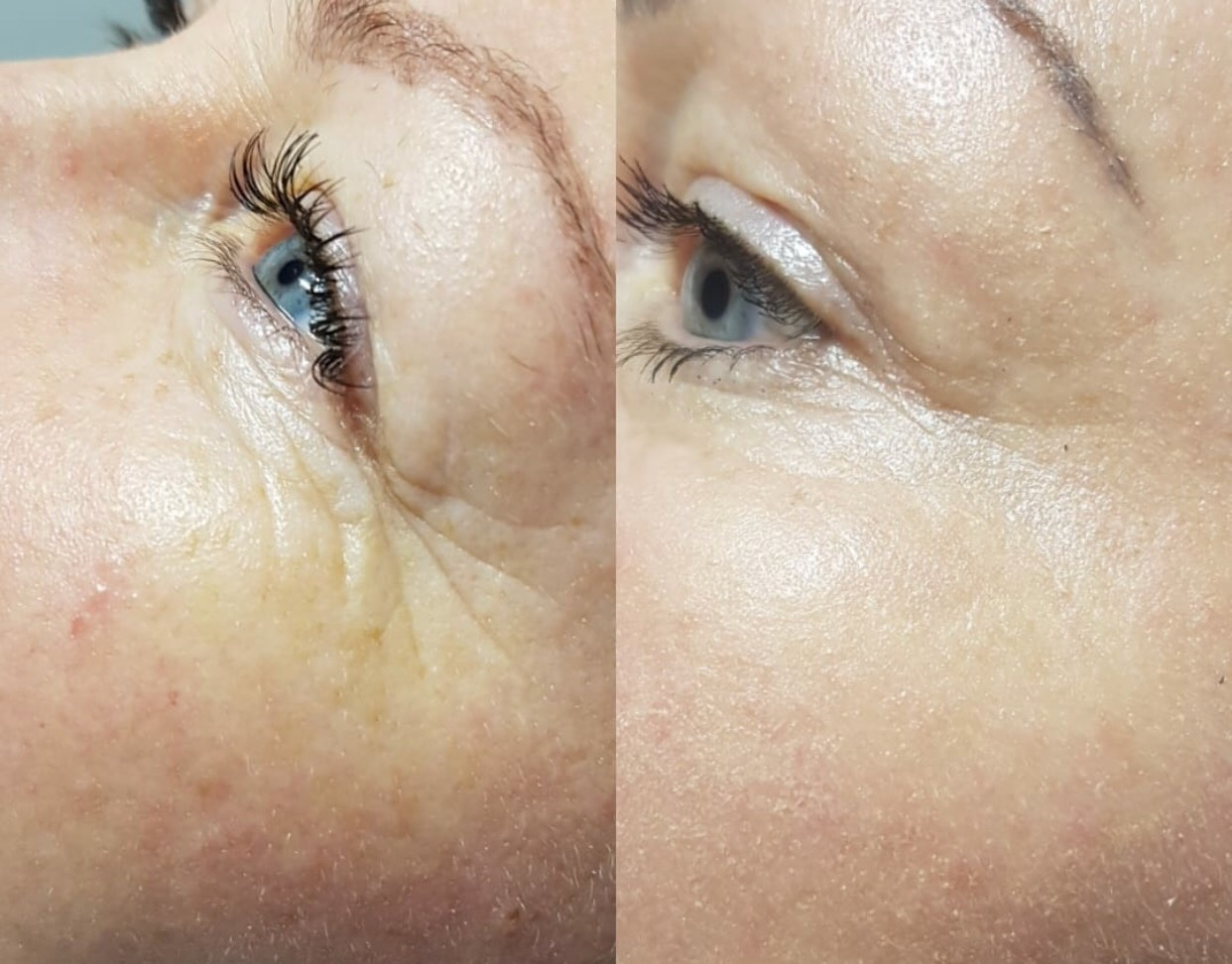 Eyebrow Tattoo Removal In San Jose | Non Laser Treatment